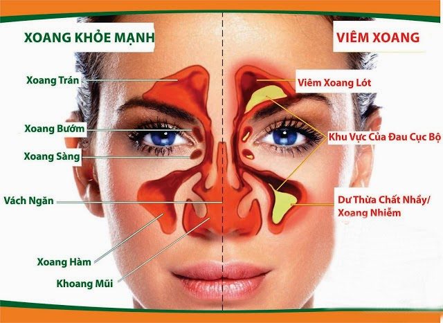 ViemXoang www Viem Xoang blogspot com